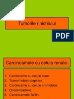 Tumorile rinichiului