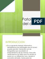 Patologías del acero (1)