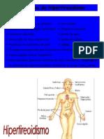 Hiper Sintomas e Hipotireoidismo