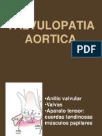 Valvulopatia Aortica Clase
