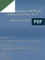 Distal Gastrectomy With B1, B2 Anastomsis Or