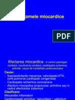 Sindroamele miocardice