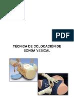 Sondeo o Cateterismo Vesical