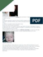Albinism o