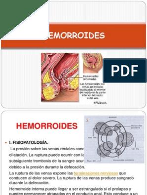 Hemorroides internas congestivas sangrantes