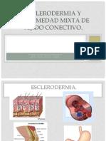 Esclerodermia y Enfermedad Mixta de Tejido Conectivo