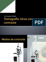 Tomografía  tórax con contraste