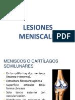 LESIONES  MENISCOS 3