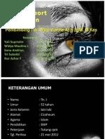 Crs Pterigium