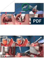 Illustrated Intubation,step by step.