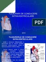 +18 - Tulburari de Conducere Intraventriculare Si IMA