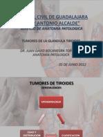 Tumores de Tiroides