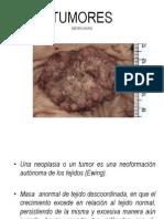 neoplasias (patologia)[1]