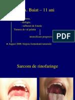 Rinofaringe-ISCRU