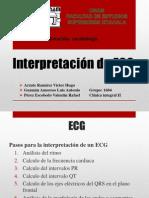 Interpretacion ECG H