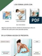 Entamoeba Histolitia Sintomatologia