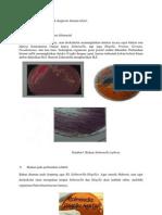 Beberapa Pemeriksaan Untuk Diagnosis Demam Tifoid