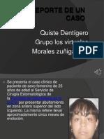 Reporte de Un Caso Clinico de Quiste Odontogenico Tarea de Tercera Unidad Patologia Estomatologia Terminado