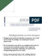 ESOFAGO 3 tpos