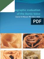 Aortic Stenosis Mason