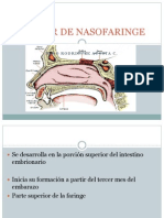 Cancer de Nasofaringe Crispi Nuevo