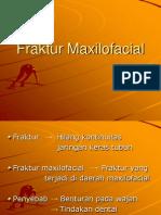 Fraktur Maxilofacial