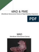 Mandibular Advancement Device & Rapid Maxillary Expansion