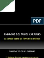 Solución Natural al Sindrome del Tunel Carpiano