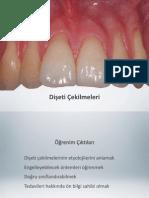 Dişeti çekilmelerinin etyolojisi ve sınıflandırılması