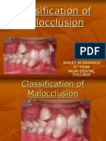 Classification of Malocclusion project mgm dental