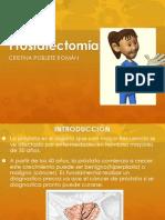Disertacion Pros
