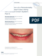 Rehabilitation of a Periodontally Compromised Case Using the Conical Crown System Part II