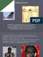 Hipertricoza