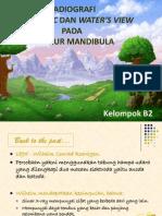 Mandible Fracture Paper's Presentation