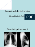Imagini radiologie toracica