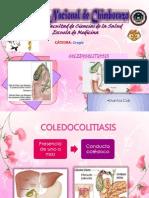 coledocolitisis