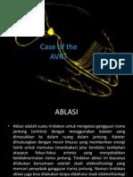 case of the AVRT