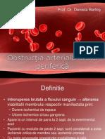 Obstructia arteriala acuta