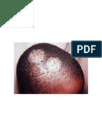 common rashes