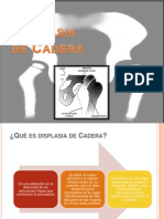 Displasia de Cadera Diapositivas