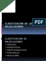 CLASIFICACION DE MALOCLUSIONES