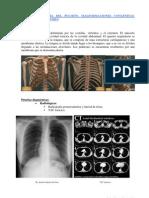 Patologia Pulmonar