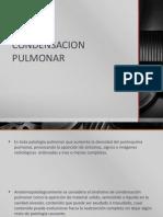 CONDENSACION PULMONAR.pptx