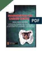Henostroza Gilberto - Diagnostico de Caries Dental
