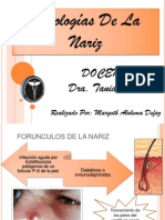 Patologias de La Nariz