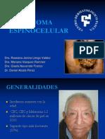 Carcinoma Epidermoide