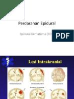 Perdarahan Epidural / Epidural Hematome (Suaida FK-UMM 2009)