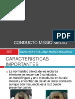 Conducto Mesio Medio Mb2 Conducto en c