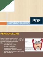 Hipotiroid kongenital