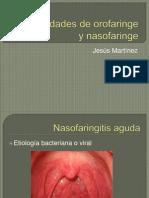Enfermedades de orofaringe y nasofaringe.pptx